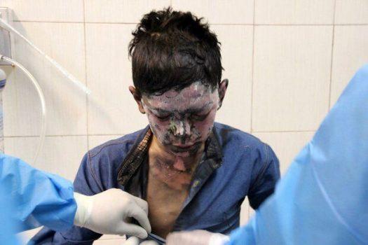 آمار قربانیان چهارشنبه سوری ۹۷ در منطقه سیستان